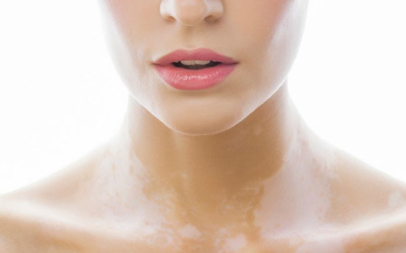 Wat is vitiligo