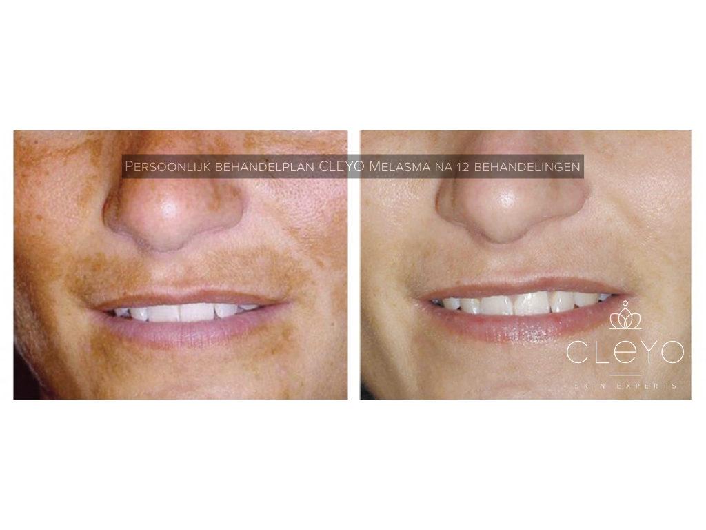 resultaat-cleyo skin experts