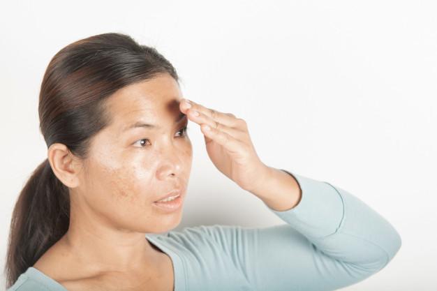 Pigmentatie-cleyo skin experts