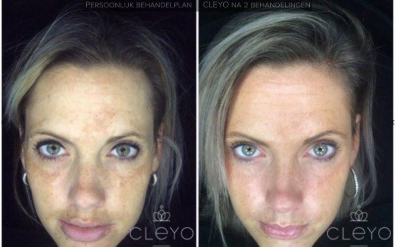 cleyo skin experts voor en na