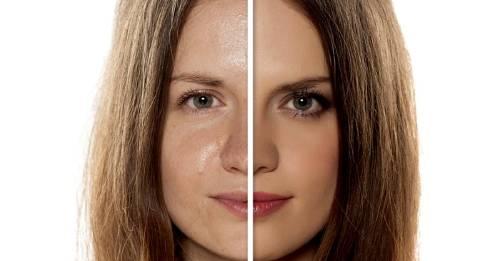 resultaat cleyo skin experts