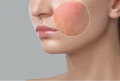 rosacea cleyo skin experts