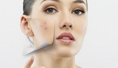 hormonen cleyo skin experts